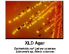 XLD Agar - Click on this image to see it full size.